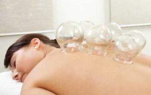Healthy Living Acupuncture Cupping