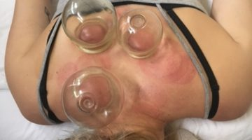 Cupping for Cough & Cold!